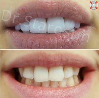 кривизна цвет и форма зубов