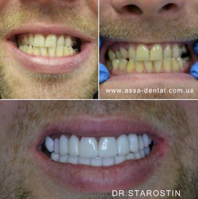 керамические виниры на всех группах зубов