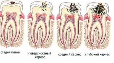 Стоматология асса и лечение зубов