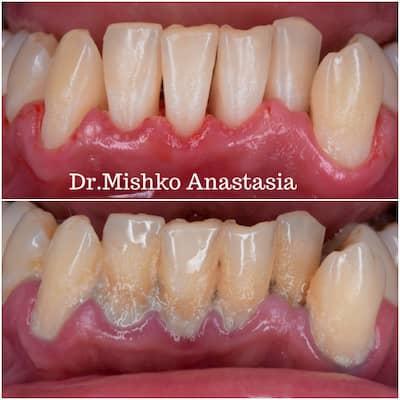 До и после чистки зубов в стоматологии асса
