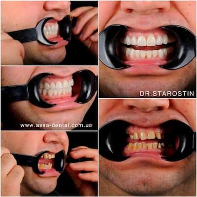 Неравномерная стираемость зубов