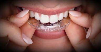 Ортодонтические элайнеры