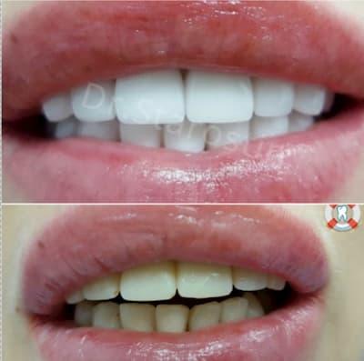 неудовлетворительный вид улыбки, наклон зубов, цвет