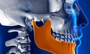 Скованность мышц в области шеи