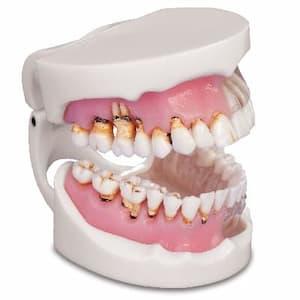 Лечение гингивита в стоматологии асса