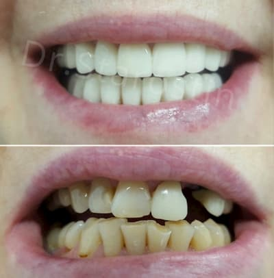 отсутствие зуба, наличие старых пломб