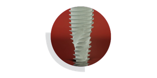 Гидрофобная поверхность импланты Неодент