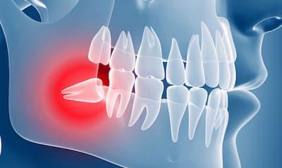 Удалять или лечить зуб мудрости