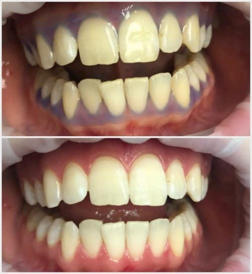 Result of teeth whitening