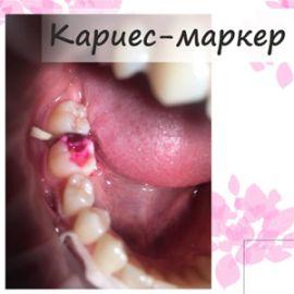 Кариес-маркер в стоматологии