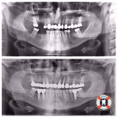 Панорамный снимок зубов в стоматологии АССА