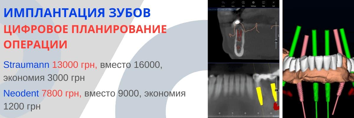 Имплантация зубов, цифровое планирование операции