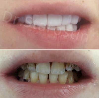 заболевание флюорозом, неудовлетворительный вид зубов