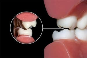 Гнатология-лечение в стоматологии АССА