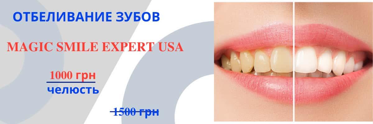 Отбеливание зубов Magic smile стоматология АССА