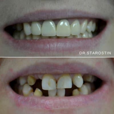 отсутствие зубов в передних отделах