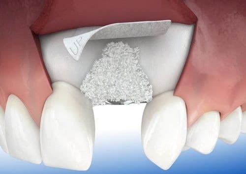 Стоматология асса костная пластика