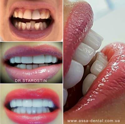 ультратонкие керамические виниры на всю группу зубов